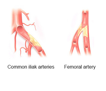 Arterial Diseases of Lower Extremity